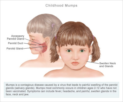 Symptoms of mumps