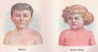 Symptoms of scarlet fever