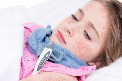 Treatment of scarlet fever
