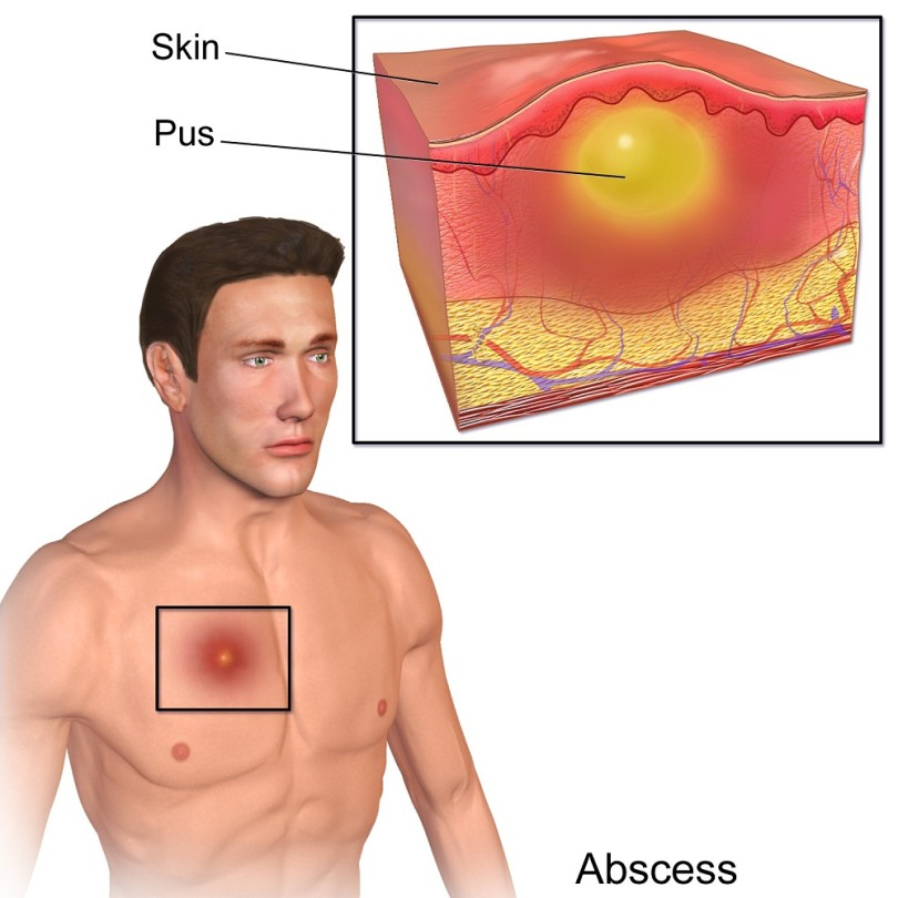 Abscess - causes, symptoms and treatment