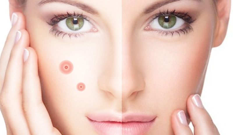 Acne - how to get rid of acne