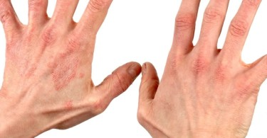 Allergic contact dermatitis - symptoms and treatment