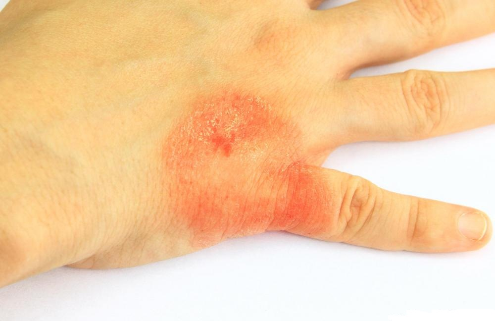 Allergic skin reaction - redness and hives