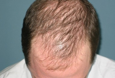 Disease and hair loss (baldness)