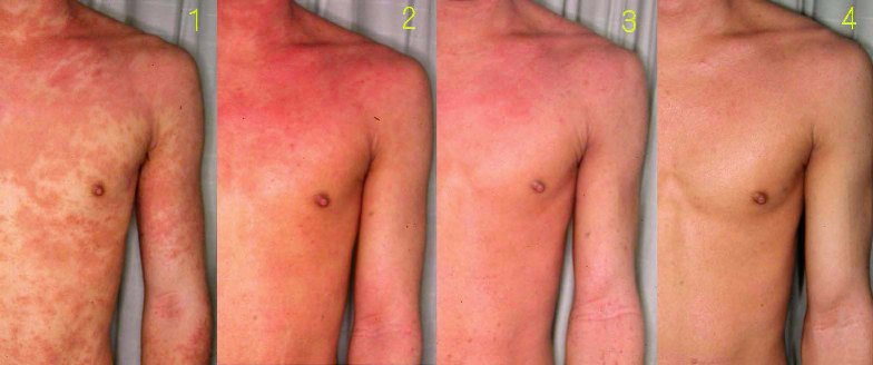 Atopic dermatitis - causes, symptoms and treatment