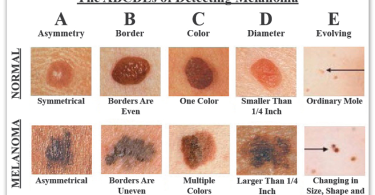 Blisters and tumors on the skin