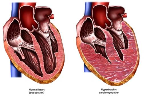 Cardiovascular Collapse - causes, symptoms and treatment