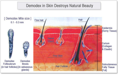 Causes and symptoms of demodicosis
