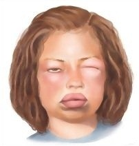 Causes of angioedema