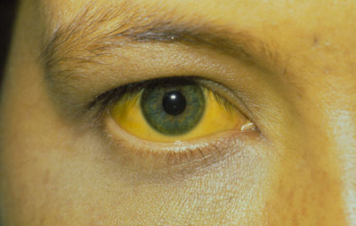 Causes of jaundice