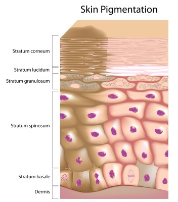 Causes of skin pigmentation