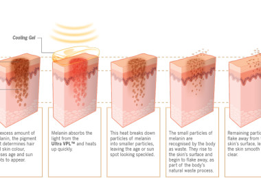 Depigmentation of the skin