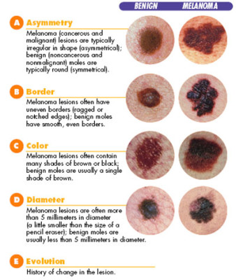Diagnosis and treatment of melanoma