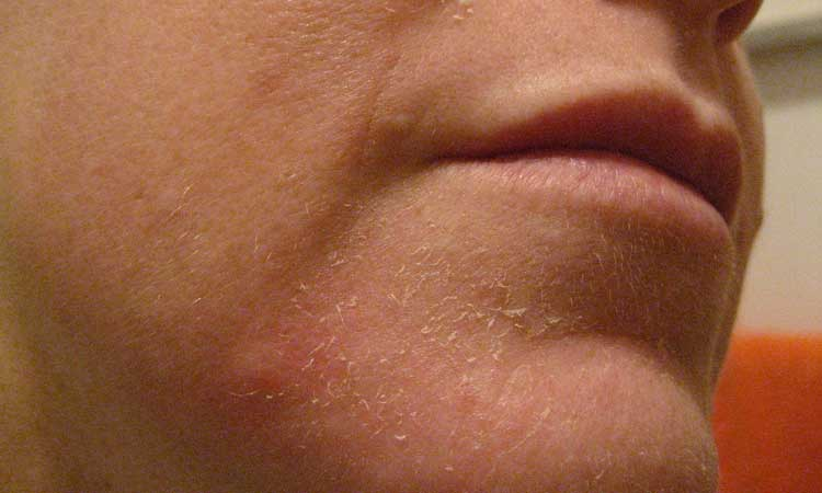 Flaking and dryness of the skin