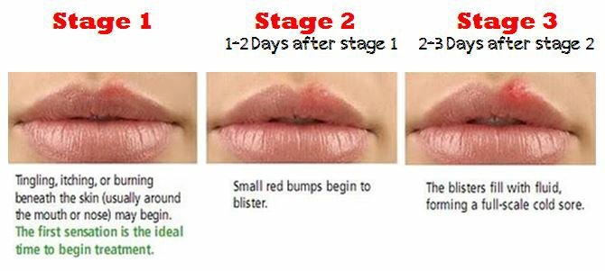 Image Result For When You Have A Developing Cold Sore Form Oral Herpes What Do Your Lips Look Like