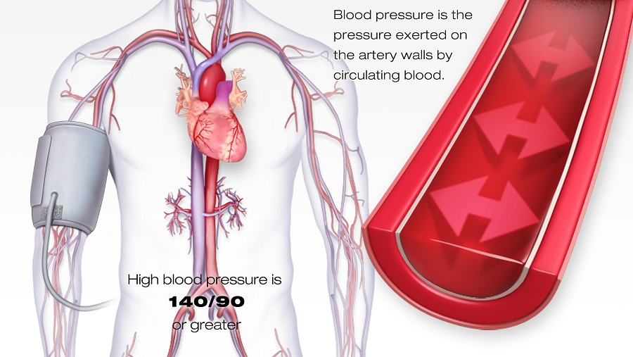 High blood pressure – what to do