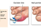 Ingrown toenail - causes, symptoms and treatment