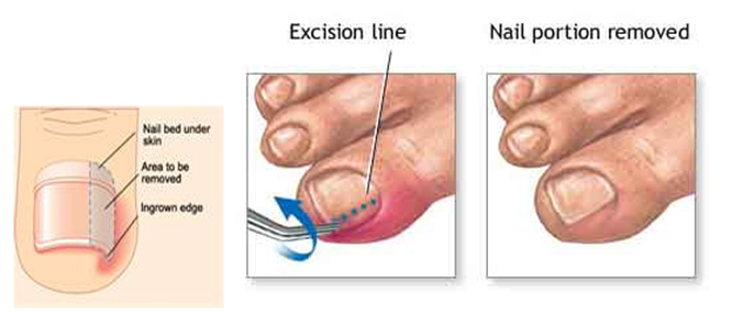 medical report for toe infection pdf