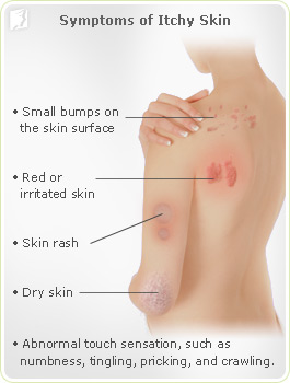 Itching of the skin - what to do if itchy skin? | Health
