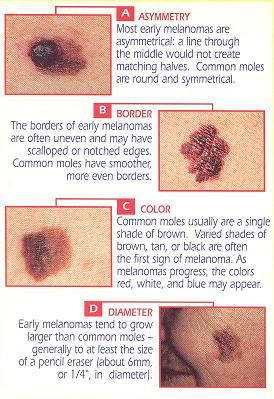Moles in norm and at a pathology