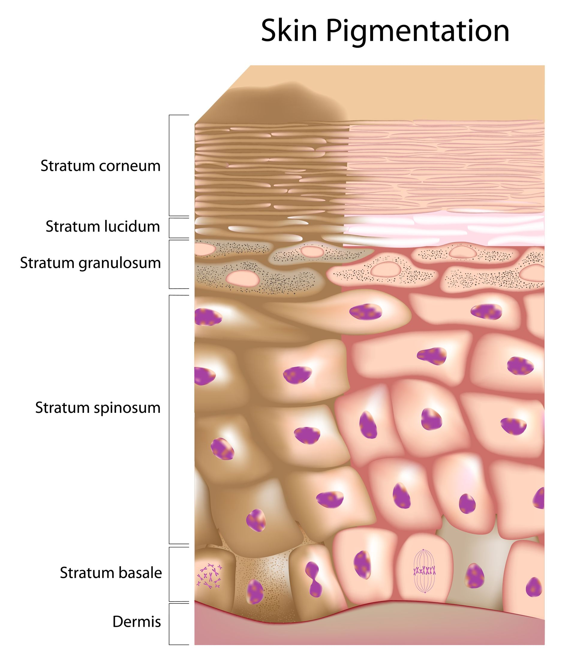 Pigmentation disorders of the skin