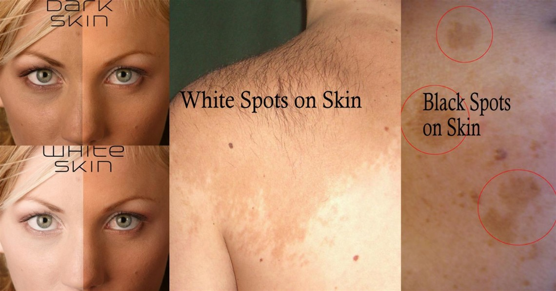 Pigmentation Of The Skin That Determines Skin Color