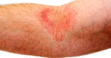 Rash and irritation on the skin