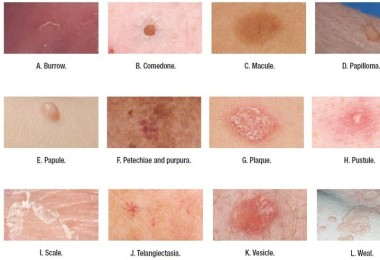 Rashes in the form of pustules on the skin