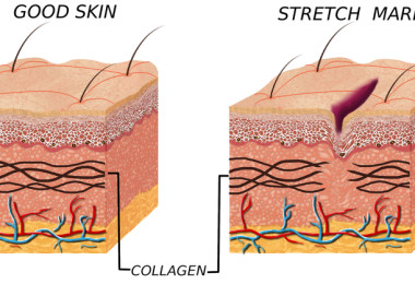 Causes of stretch marks