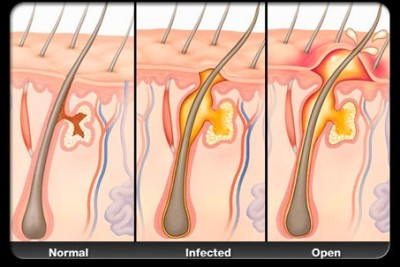 Symptoms and causes of boils