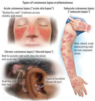 Symptoms and causes of lupus