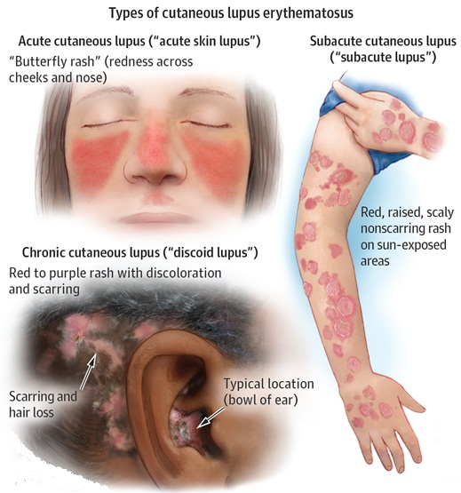 Cutaneous Lupus Erythematosus: Diagnosis and treatment