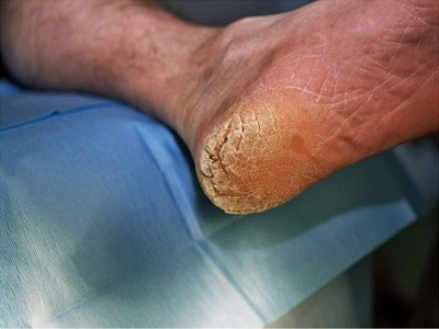 Symptoms and treatment of Hyperkeratosis