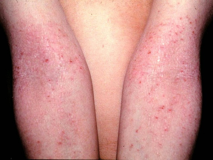 atopic dermatitis cause