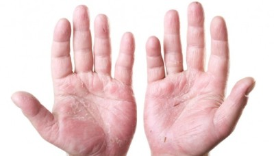 Symptoms of dermatitis
