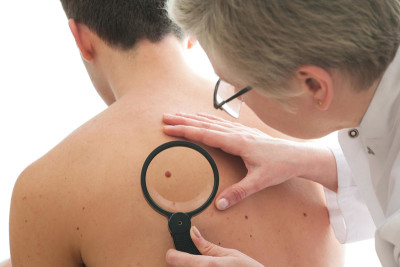 Symptoms and causes of fibroma of the skin