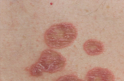 Symptoms of lichen planus