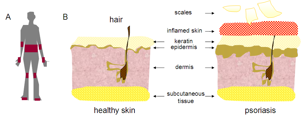 The diagnosis of psoriasis was confirmed by skin biopsy 3