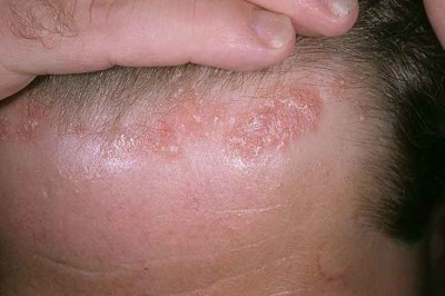 Symptoms of seborrheic dermatitis