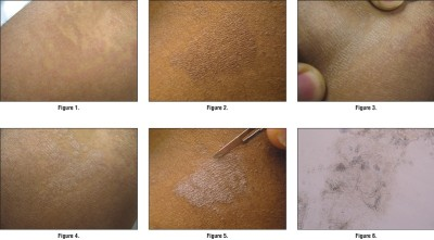 Symptoms tinea versicolor