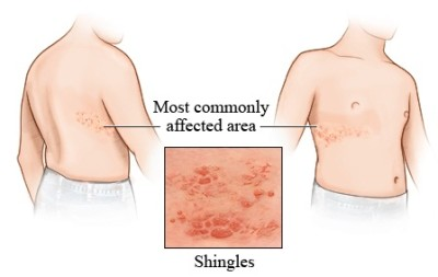 The Shingles on the skin - causes, symptoms and treatment