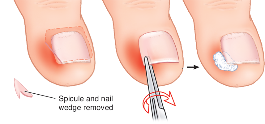 Ingrown Toenail Causes Symptoms And Treatment Health