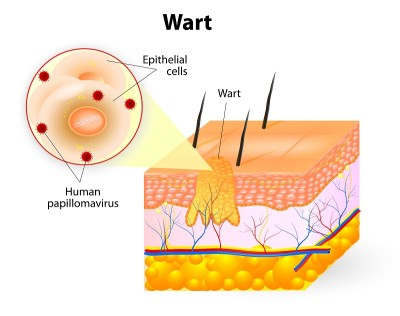 Treatment for warts