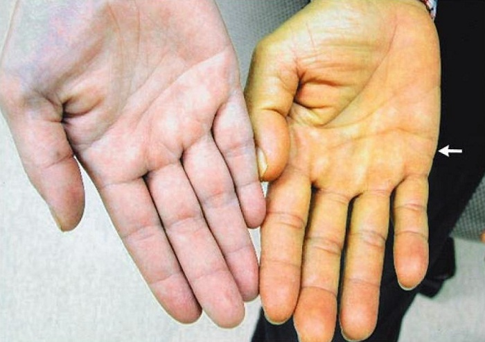 Jaundice (yellowing of the skin) - symptoms and treatment ...