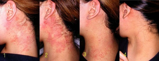 Atopic Dermatitis Pictures, Treatment, Home Remedies & Causes