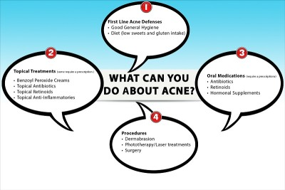 Treatment of blackheads and acne