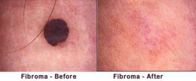 Treatment of fibromas of the skin