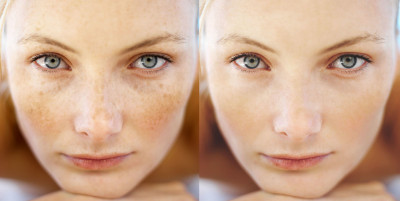 Treatment of freckles