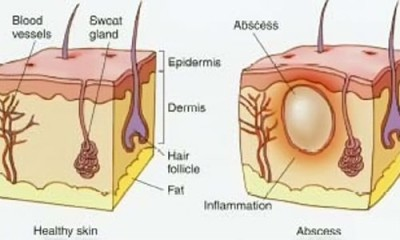 Treatment of skin abscess