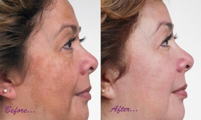 Treatment of skin pigmentation
